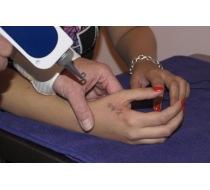 Odstranění tetování 2