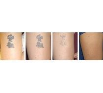 odstraňování tetování